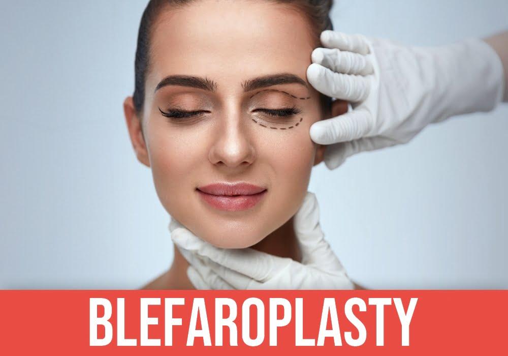 Blefaroplasty
