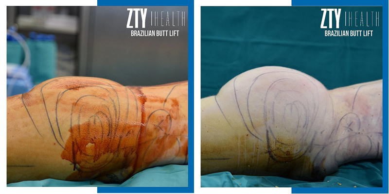 BBL Surgery before and after in turkey