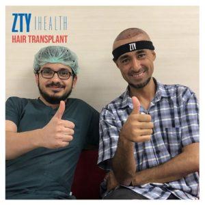 Fue-Hair-Transplantation-in-Turkey-300x300