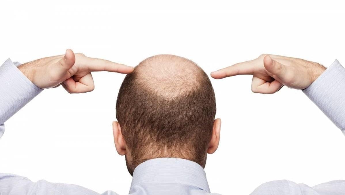 Hair Transplant in Turkey - Zty Health Turkey