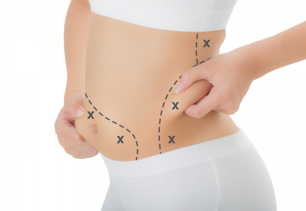 Tummy Tuck Surgery Turkey - Zty Health