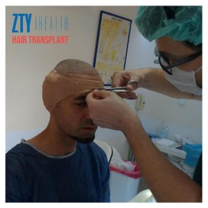What-are-the-Advantages-of-Fue-Hair-Transplantation-300x300