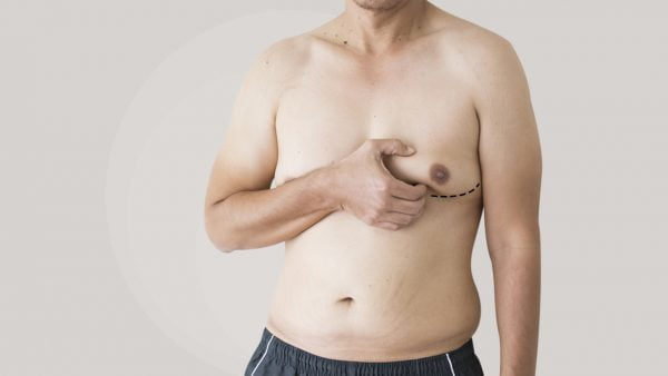 Zty Gynecomastia Surgery in Turkey