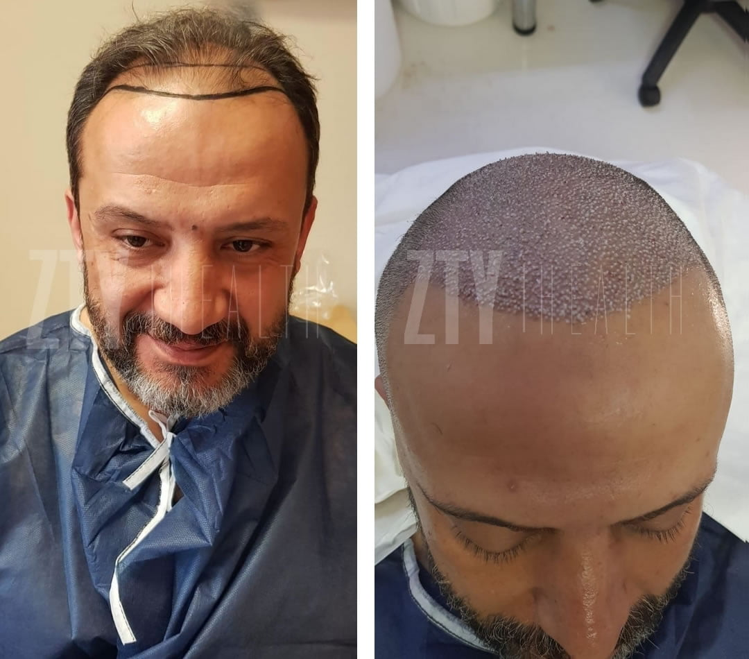 new-patient-hair-transplant-1