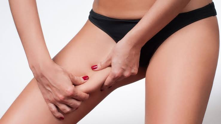 Leg Fat Removal Surgery