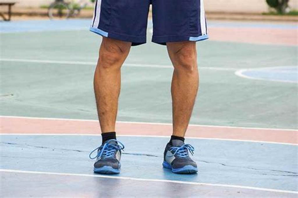 Bow leg Surgery