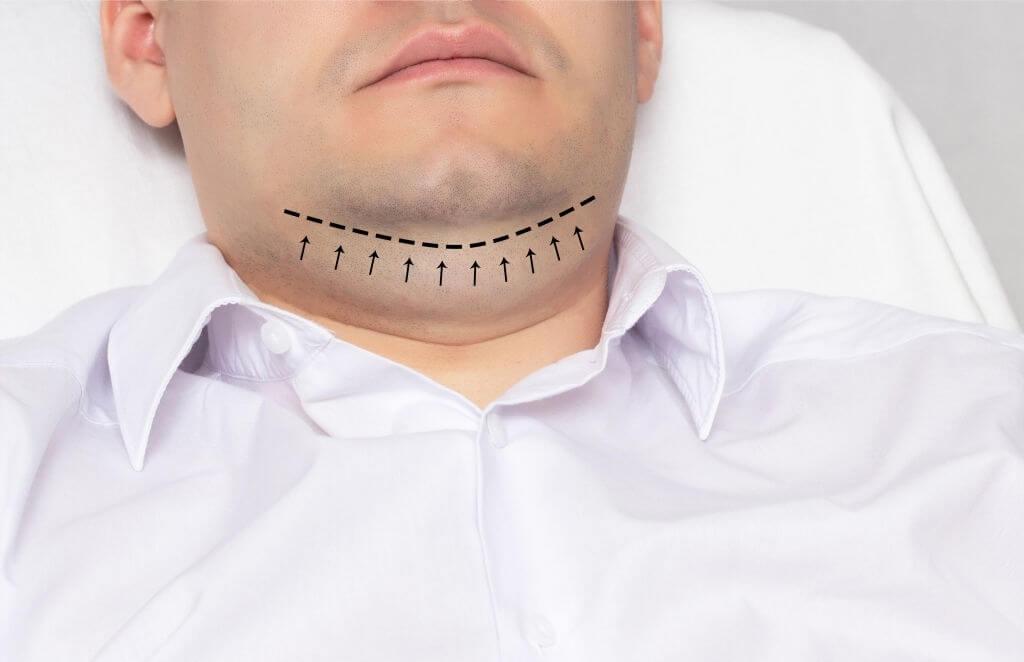 Chin Liposuction Turkey Cost