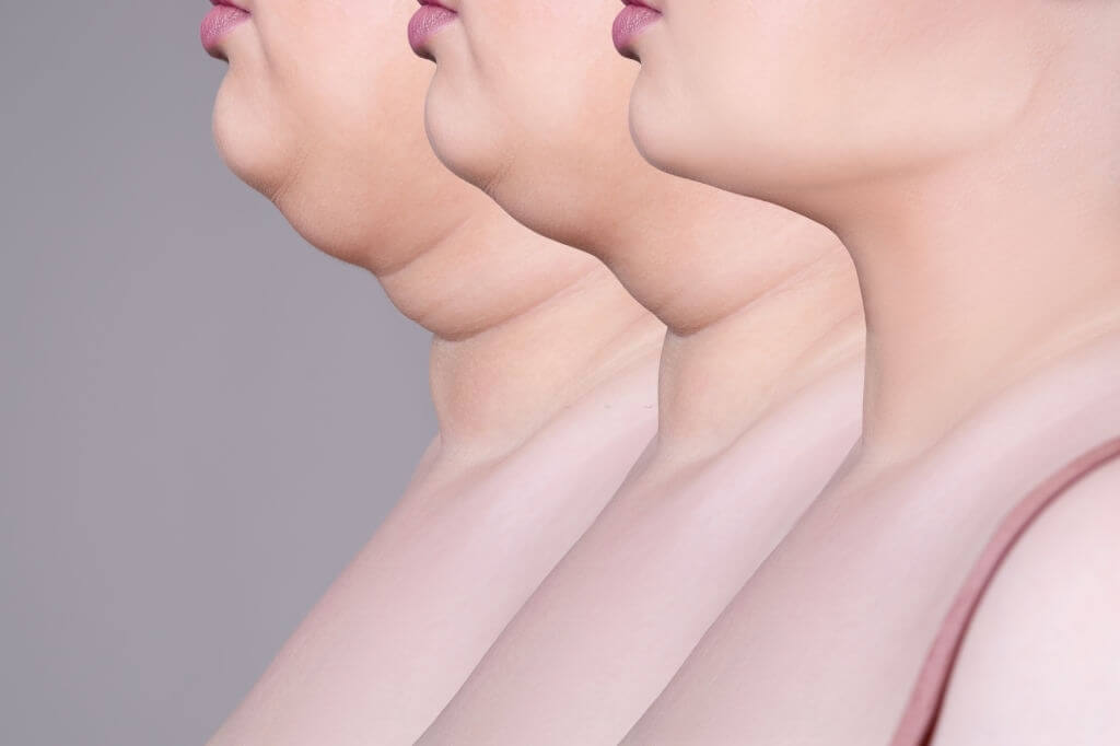 Double Chin Surgery