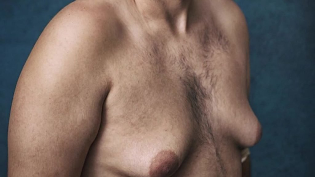 Gynecomastia Disorder - Zty Health Plastic Surgery Turkey