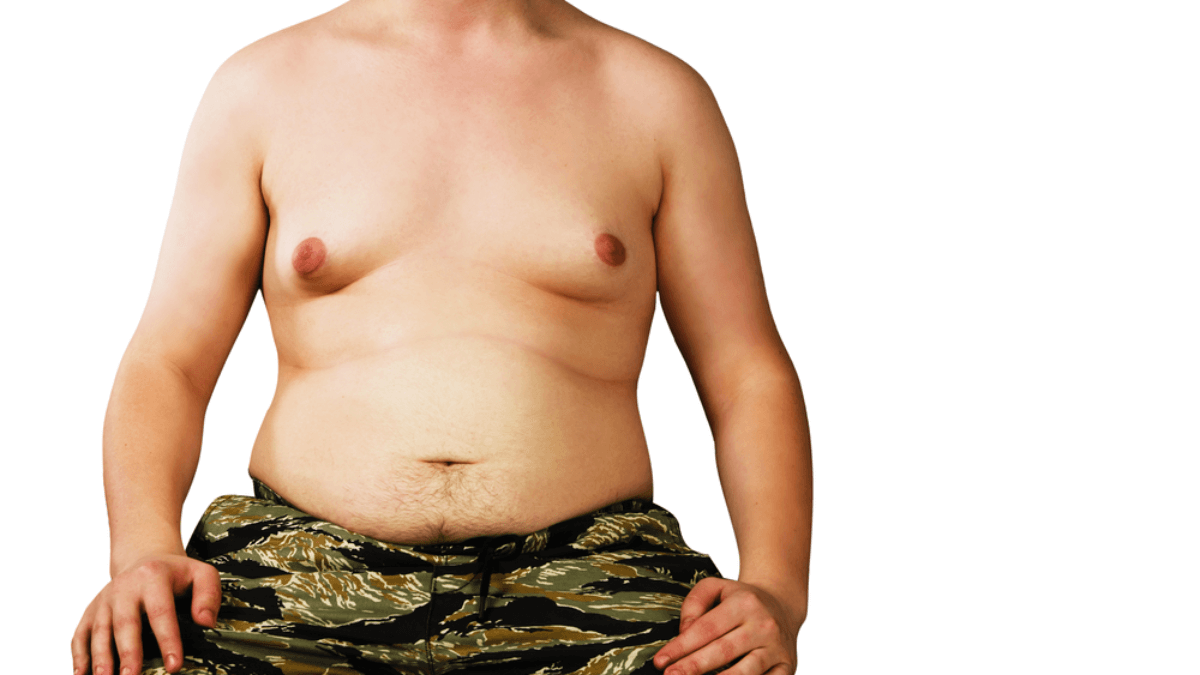 Does Gynecomastia Go Away Without Surgery - Zty Health Plastic Surgery Turkey