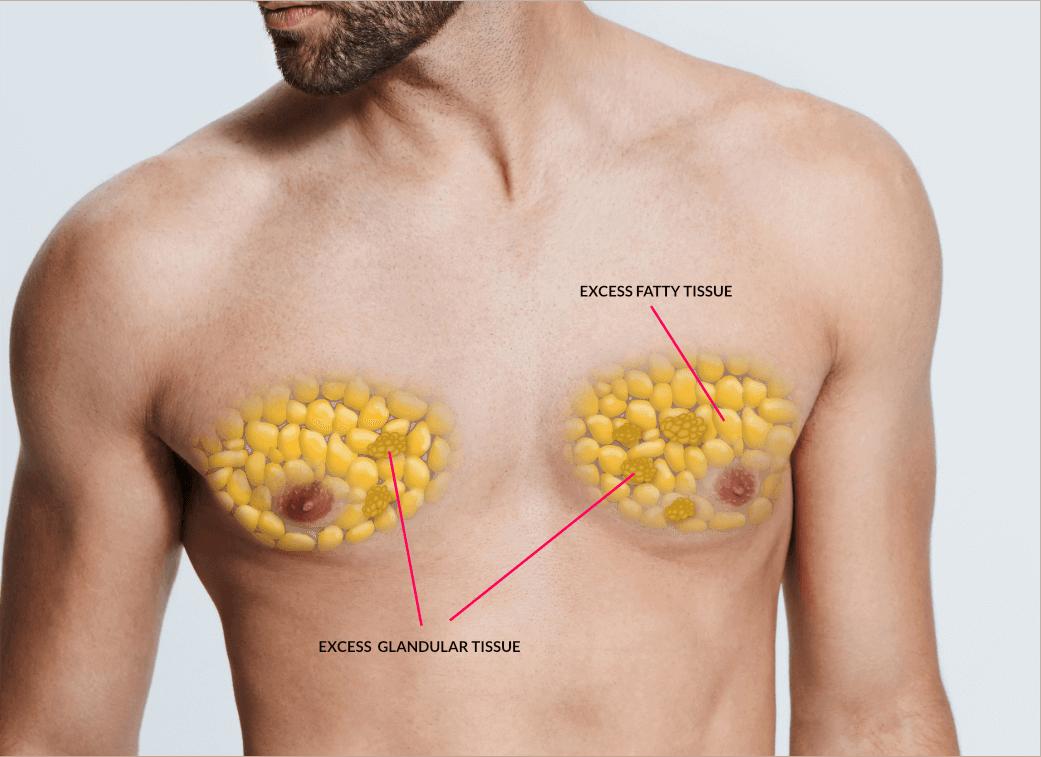 I do not want to have gynecomastia surgery - Zty Health Turkey