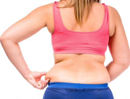 Removal of Fats From Back
