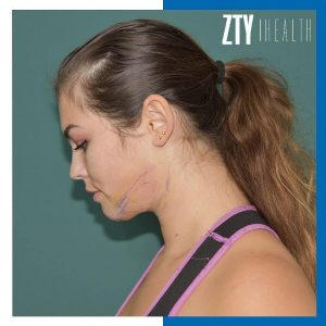 Chin Liposuction After - Zty Health